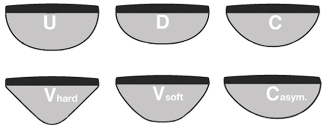 formes manche de guitare : u, c, d, v